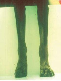 lyme disease dog symptoms